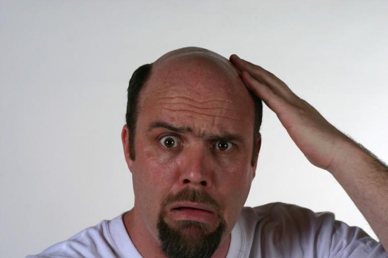 Risposte di trapianto di capelli Ucraina