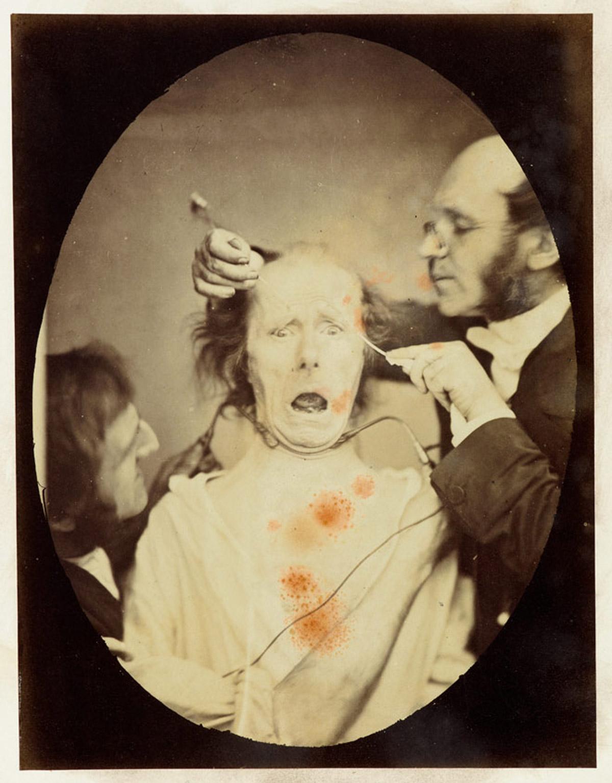 Gli esperimenti dell'orrore di Darwin