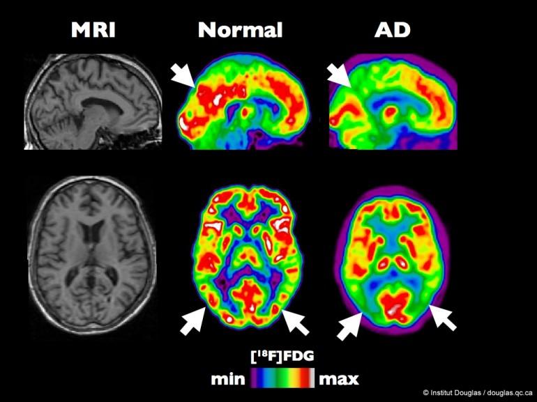 Alzheimer 2677257668_6eea7bbc99_o