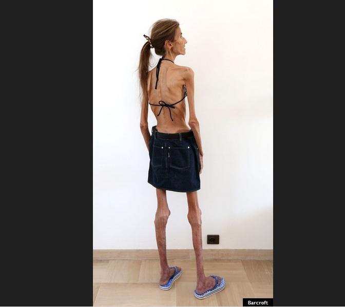anoressia7