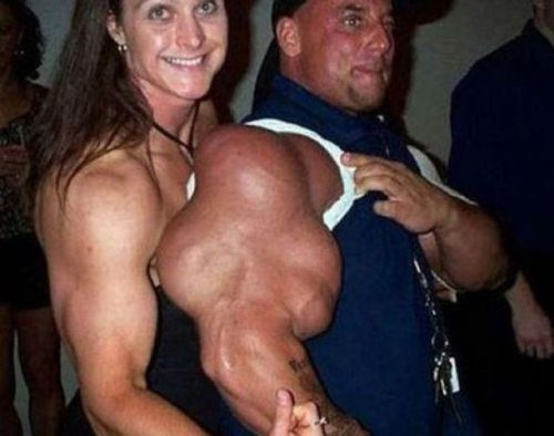 steroid abuse photos