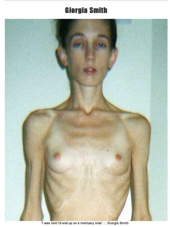 anoressia 5