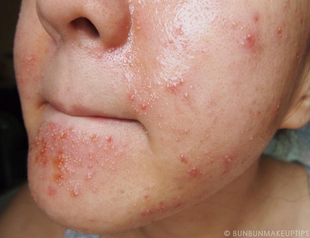 аллергия на солнце википедия