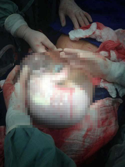 neonato sacco amniotico 1