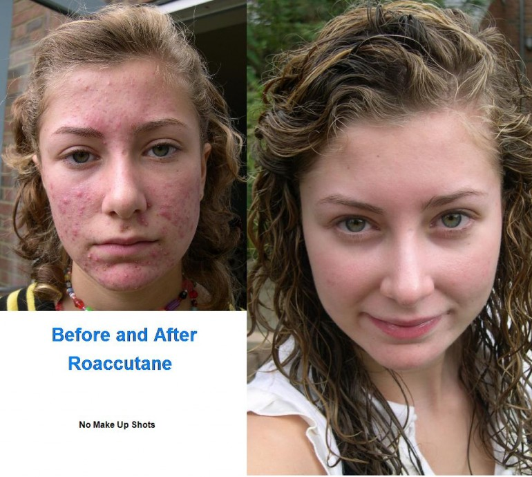 Before and After Roaccutane