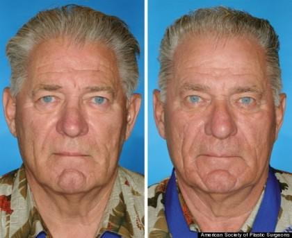 Entrambi fumano, ma quello di destra ha iniziato 14 anni prima