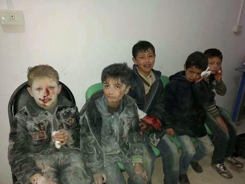 siria bombardamento bambini feriti 1