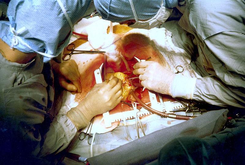 adesivo-sutura-cuore-operazione