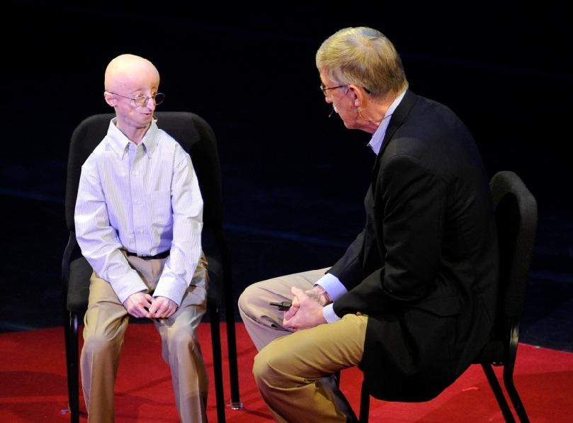 sam berns progeria 2