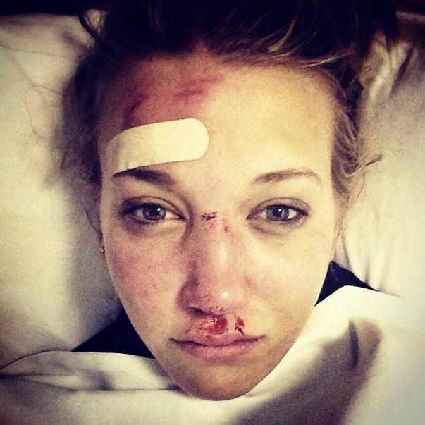Rowan Cheshire caduta ferite infortunio