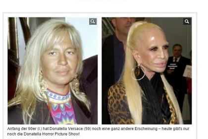 Donatellla Versace all'inizio degli anni novanta e ora. come mostrata da Bild Zeitung.  Photo credit: Screenshot di Bild.de