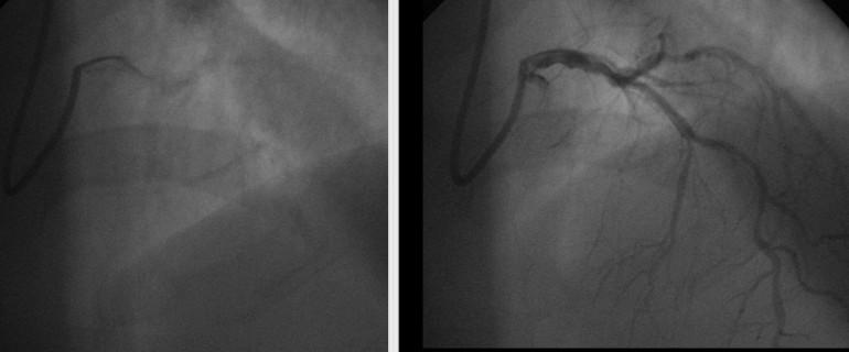Trattamento di varicosity laser video fisso