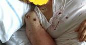 A Napoli i pazienti stanno a letto in ospedale tra le formiche